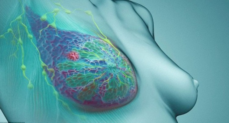 Hope For Breast Cancer Patients
