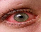 Prevent Yourself  Getting 'Pink Eye'