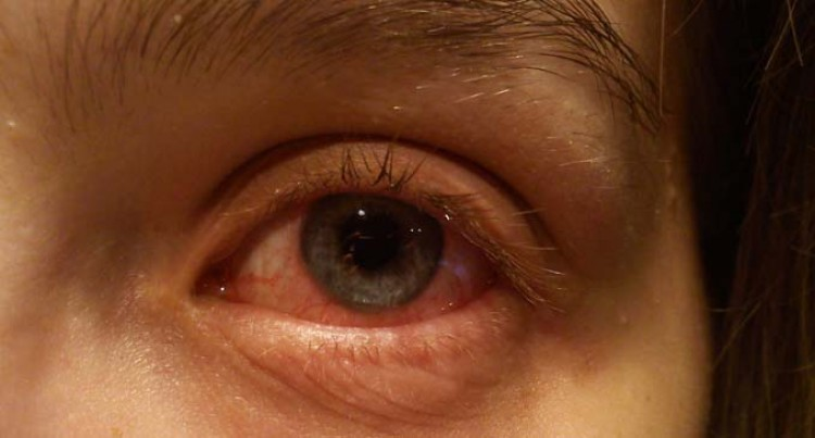 Decline In Conjunctivitis In Central Division