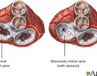 Rheumatic Heart Disease Closer to Home for Wainiqolo