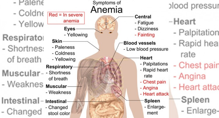 Iron  Deficiency Anaemia,  An Epidemic