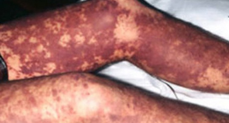 Ministry Declares Outbreak Of Meningococcal Disease