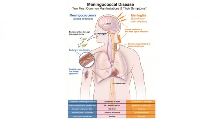 Meningococcal Disease – Mini course Education