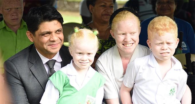 Albinos 'Have Unique Abilities'