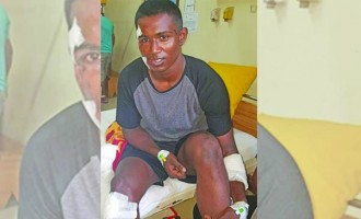 Injured Constable Not Discouraged By Injury
