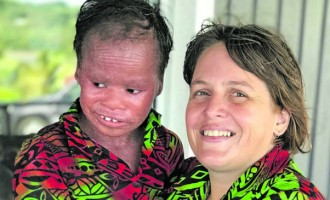 Adoptive Mother Has Strong Hope For Daughter With Rare Skin Condition