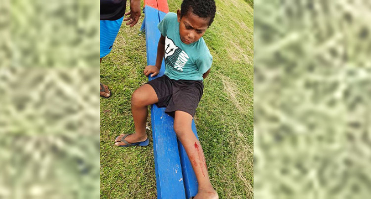 Man Saves Young Boy From Three Dogs In Lautoka