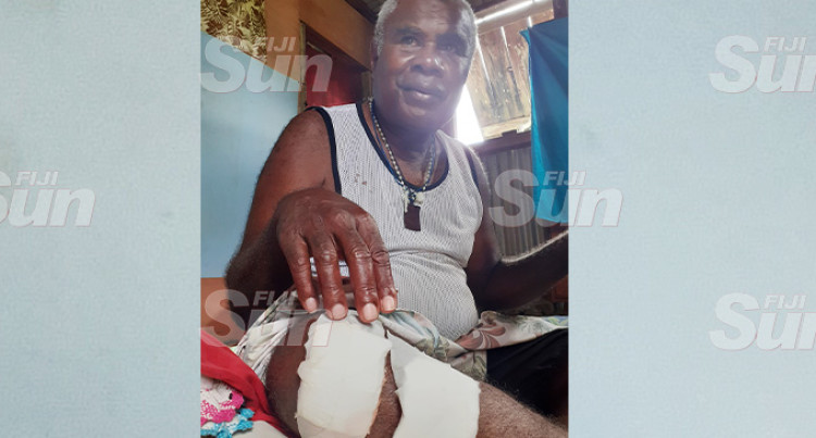 Bruised, Battered Tikokece Taxi Driver, 61, Says He is Lucky To Be Alive