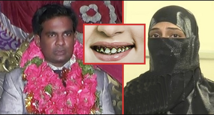 Man Divorces Wife For Crooked Teeth In Hyderabad