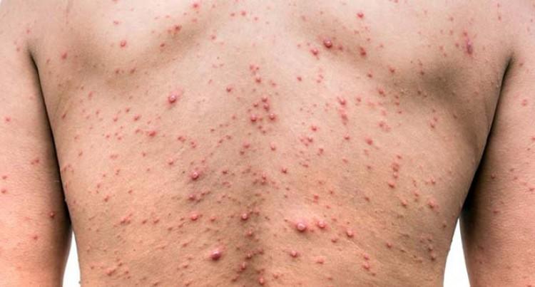 'No Chickenpox Outbreak'