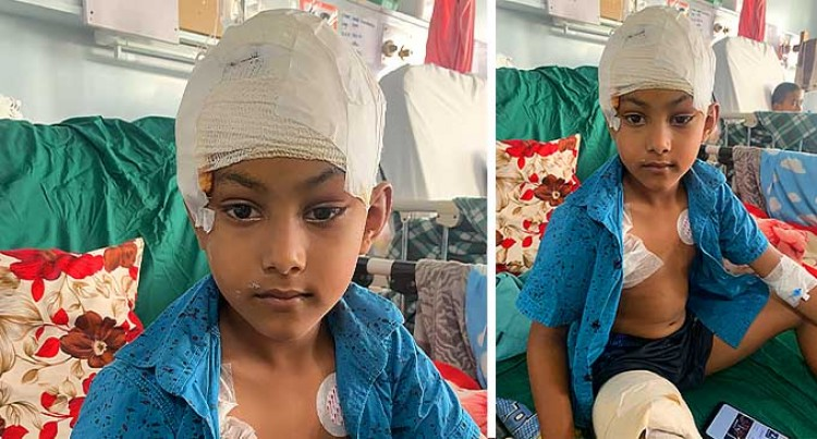 Father Tells: How My Boy, 7, Was Mauled By A 'German Shepherd'